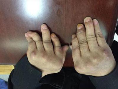 类风湿致双手多指畸形于我院经郑家琛主任治好