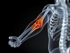 肘关节滑膜炎最佳治疗方法是什么?