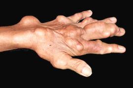 郑州治疗痛风石医院讲解碱化尿液可以去除痛风石吗?