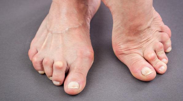 情况严重的痛风病患者如何剔除痛风石呢?
