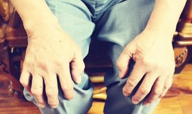 类风湿性关节炎会导致贫血吗,类风湿有哪些症状表现